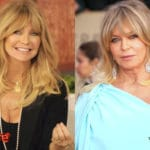 Goldie Hawn Before and After Cosmetic Surgery 150x150