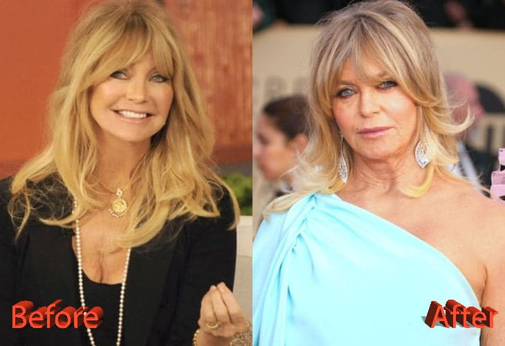 Goldie Hawn Before and After Cosmetic Surgery