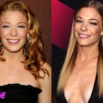 Leann Rimes Before and After Cosmetic Surgery 150x150