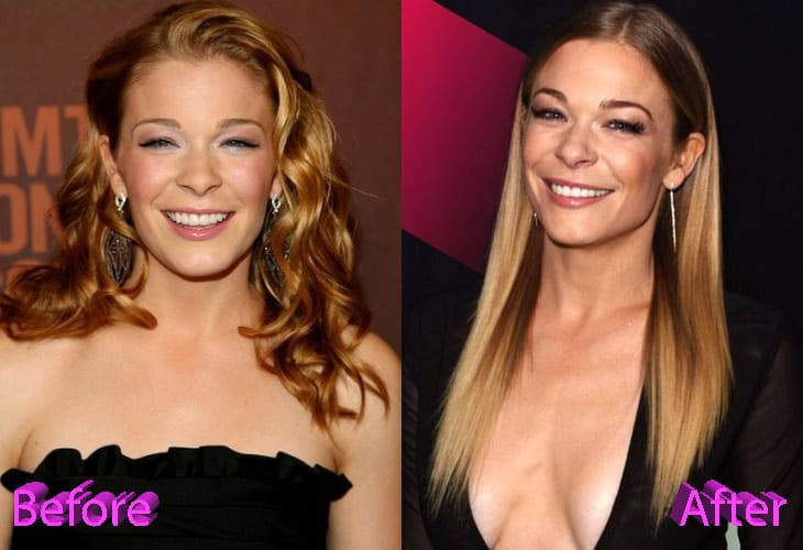 Leann Rimes Before and After Cosmetic Surgery