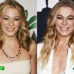 Leann Rimes Before and After Plastic Surgery 150x150