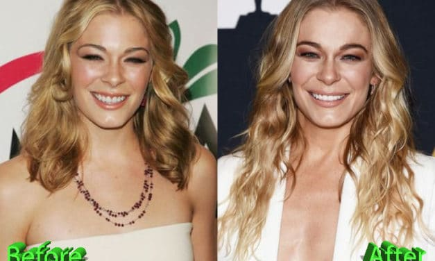 Leann Rimes Plastic Surgery: A New Look For The Hubby