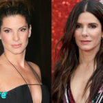 Sandra Bullock Before and After Cosmetic Surgery 150x150