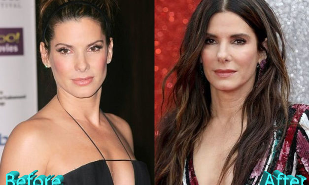 Sandra Bullock Plastic Surgery Speculations Sparked By Oscar Appearance