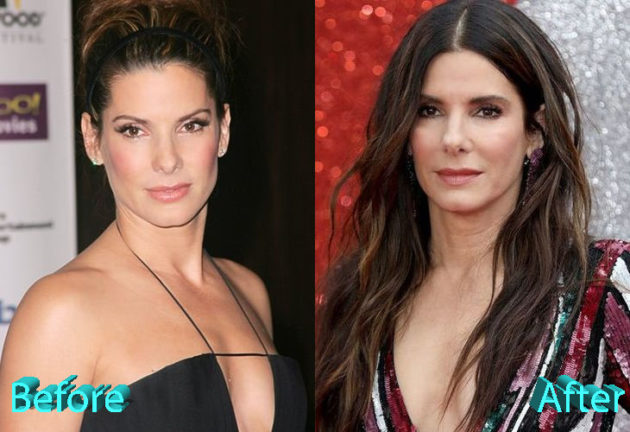Sandra Bullock Before and After Cosmetic Surgery 630x432