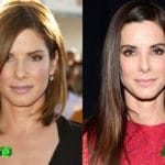 Sandra Bullock Before and After Plastic Surgery 150x150