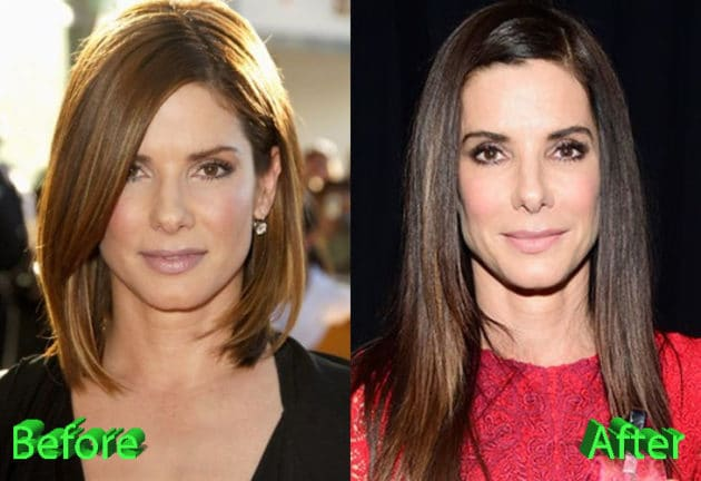 Sandra Bullock Before and After Plastic Surgery 630x432