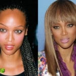 Tyra Banks Before and After Nose Job Procedure 150x150