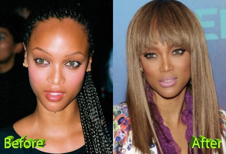 Tyra Banks Before and After Nose Job Procedure