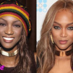Tyra Banks Before and After Nose Job Surgery 150x150