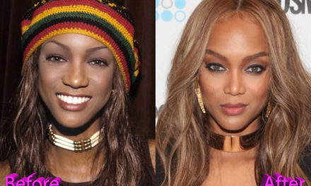 Tyra Banks Nose Job: The Cat Is Finally Out Of The Bag
