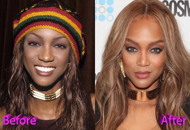 Tyra Banks Before and After Nose Job Surgery