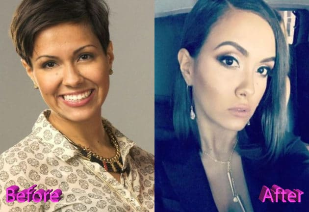Briana Dejesus Before and After Plastic Surgery 630x432