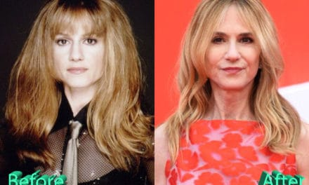Holly Hunter Plastic Surgery : The Latest Talk Of The Town