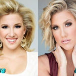Savannah Chrisley Before and After Cosmetic Surgery 150x150