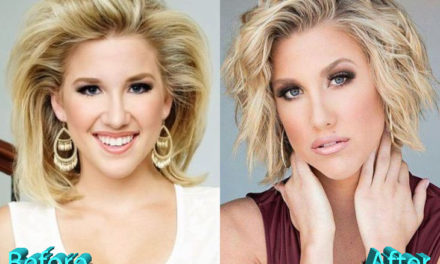 Savannah Chrisley Plastic Surgery Rumors Can Be True