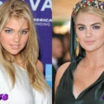 Kate Upton Before and After Cosmetic Surgery 150x150