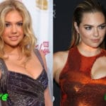 Kate Upton Before and After Plastic Surgery 150x150