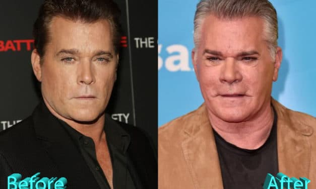 Ray Liotta Plastic Surgery: Shock And Surprise For Fans