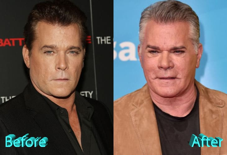 Ray Liotta Before and After Cosmetic Surgery