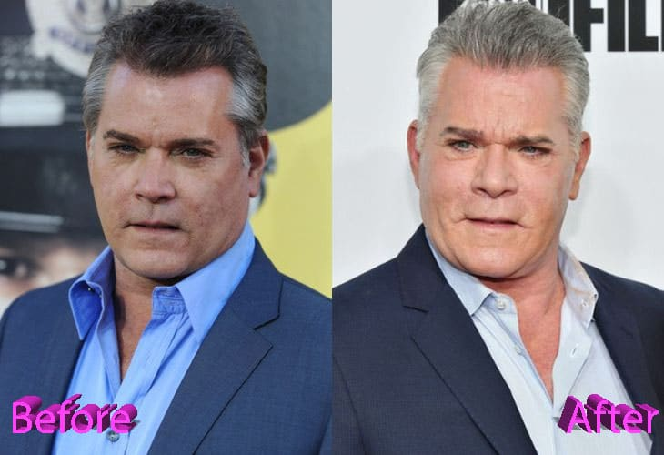 Ray Liotta Before and After Plastic Surgery