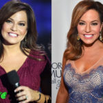 Robin Meade Before and After Cosmetic Surgery 150x150
