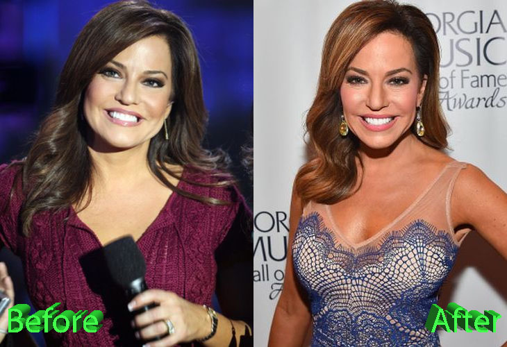 Robin Meade Before and After Cosmetic Surgery