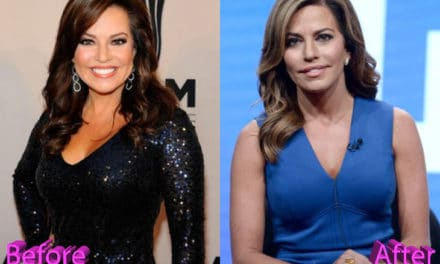 Robin Meade Plastic Surgery: How To Stay Young And Fresh