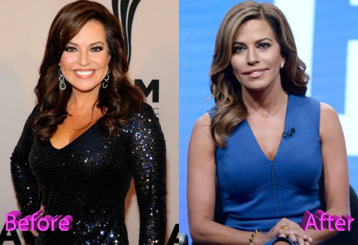 Robin Meade Before and After Plastic Surgery