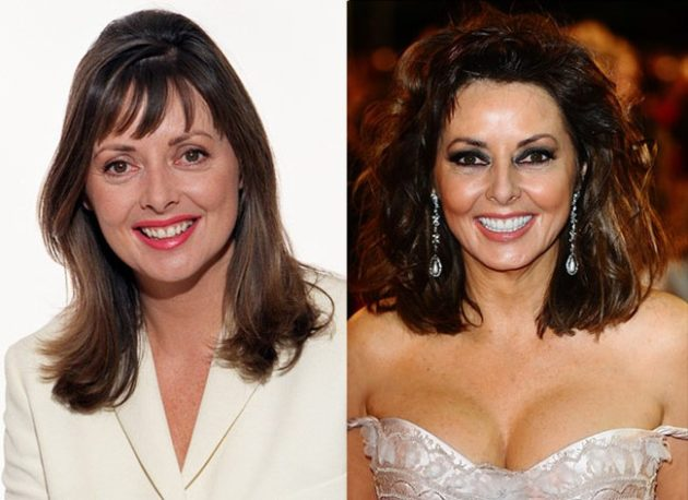 Carol Vorderman before and after breast implants plastic surgery 630x458