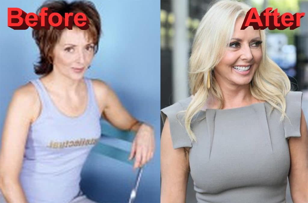 Carol Vorderman Looking Great After Breast Augmentation-4230
