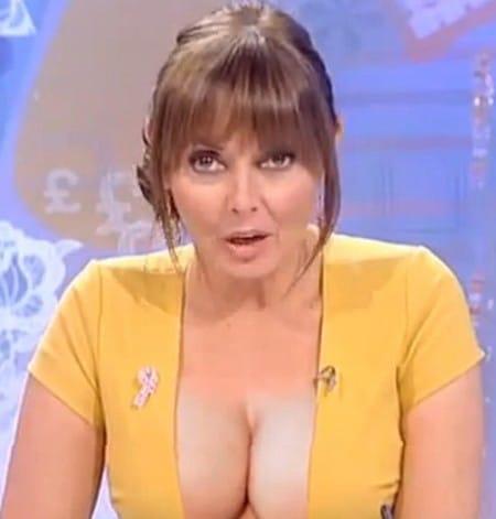 did Carol Vorderman had breast augmentation
