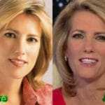 Laura Ingraham Before and After Cosmetic Surgery 150x150