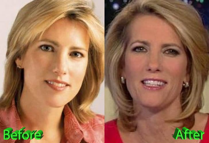 Laura Ingraham Before and After Cosmetic Surgery