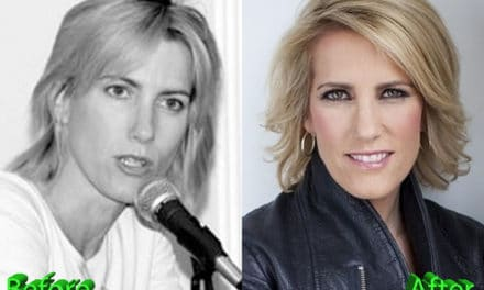 Laura Ingraham Plastic Surgery: Nothing More Than A Gossip?