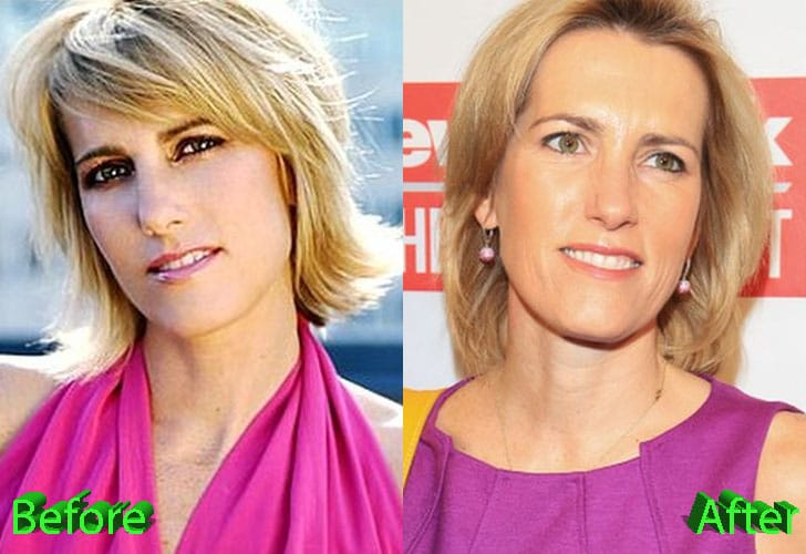 Laura Ingraham Plastic Surgery Before and After