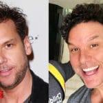 Dane Cook before and after plastic surgery 150x150