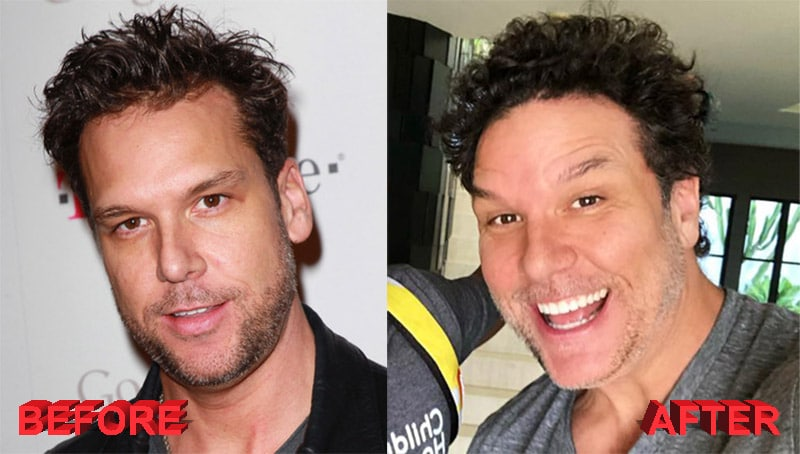 Dane Cook before and after plastic surgery