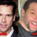 Dane Cook plastic surgery before and after 150x150
