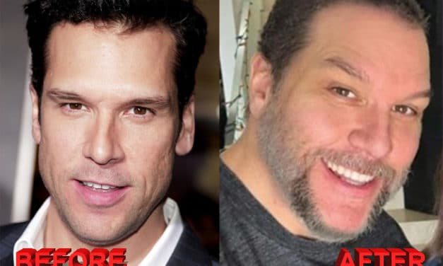 Dane Cook Plastic Surgery – Before and After Photos