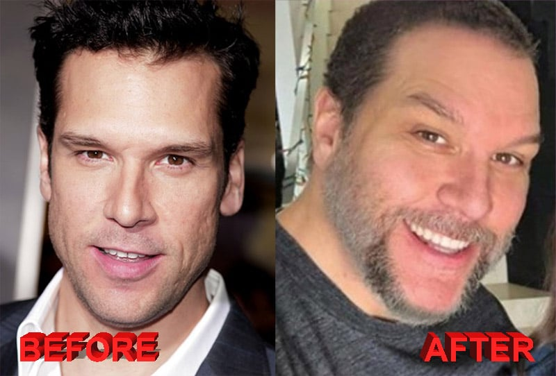 Dane Cook plastic surgery before and after